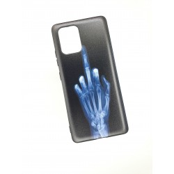 Silikonový obal s potiskem na Samsung Galaxy S20 - Rentgen