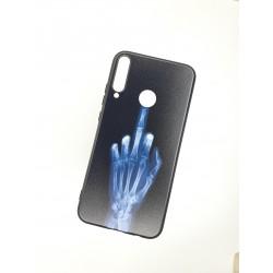 Silikonový obal s potiskem na Samsung Galaxy A20s - Rentgen