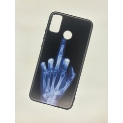 Silikonový obal na Samsung Galaxy M21 s potiskem - Rentgen