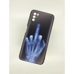 Silikonový obal na Samsung Galaxy A12 s potiskem - Rentgen