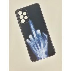 Silikonový obal s potiskem na Samsung Galaxy A72 - Rentgen