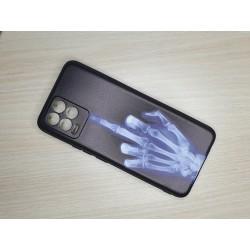 Silikonový obal na Realme 8 s potiskem - Rentgen